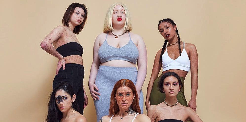 Missguided's Latest Campaign Is Wanting You To Embrace Your 'Flaws'